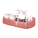 Fixed partial denture (bridge)